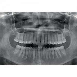 Пантомографическая рентгеновская система X-Mind Trium