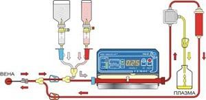 Аппарат для плазмафереза ГЕМОС-ПФ многофункциональный