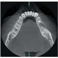 Пантомографическая рентгеновская система X-Mind Trium с 3D томографией